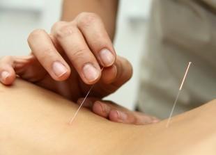 acupuntura_1